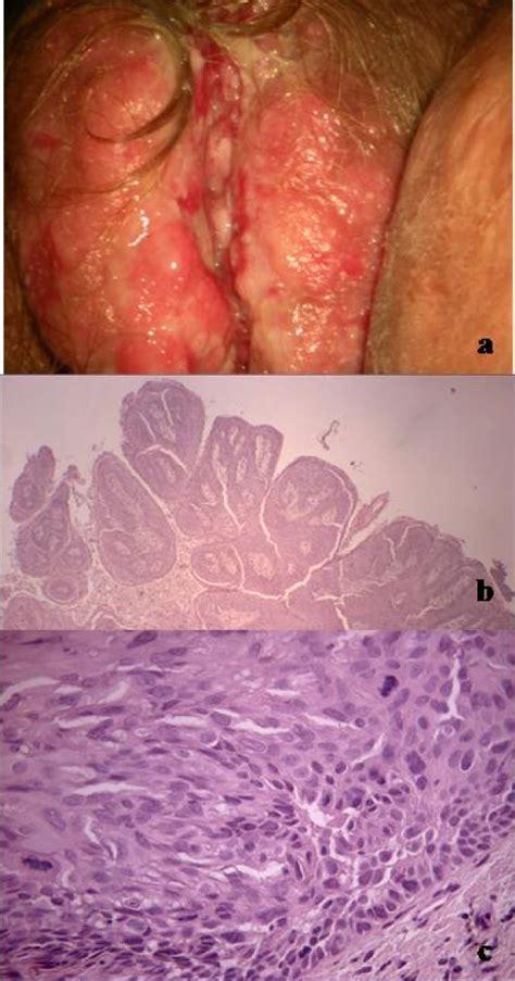 Vulvar lesions symptoms, diagnosis, treatments and causes jpg 600x1144