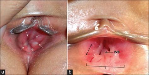 Post menopause, irritationsoreness just inside vaginal jpg 806x411