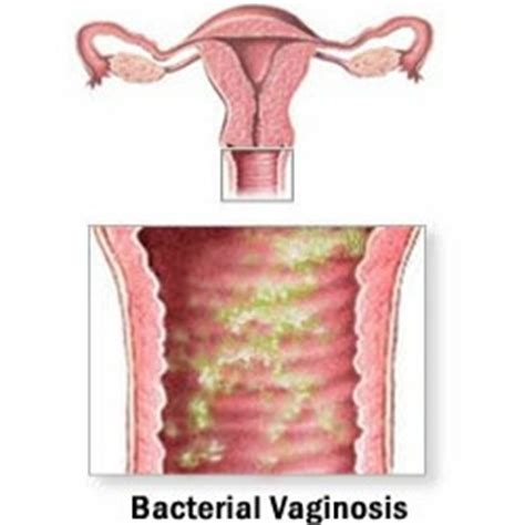 herbal treatment for vaginal baterial infections jpg 250x250