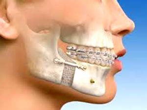 Maxillofacial surgery st georges healthcare services png 300x225